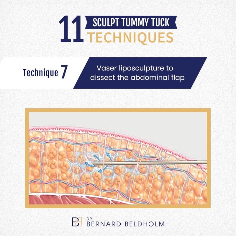 11 Sculpt Tummy Tuck Technique