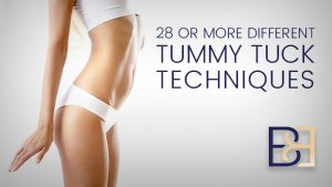28 Different Tummy Tuck Techniques