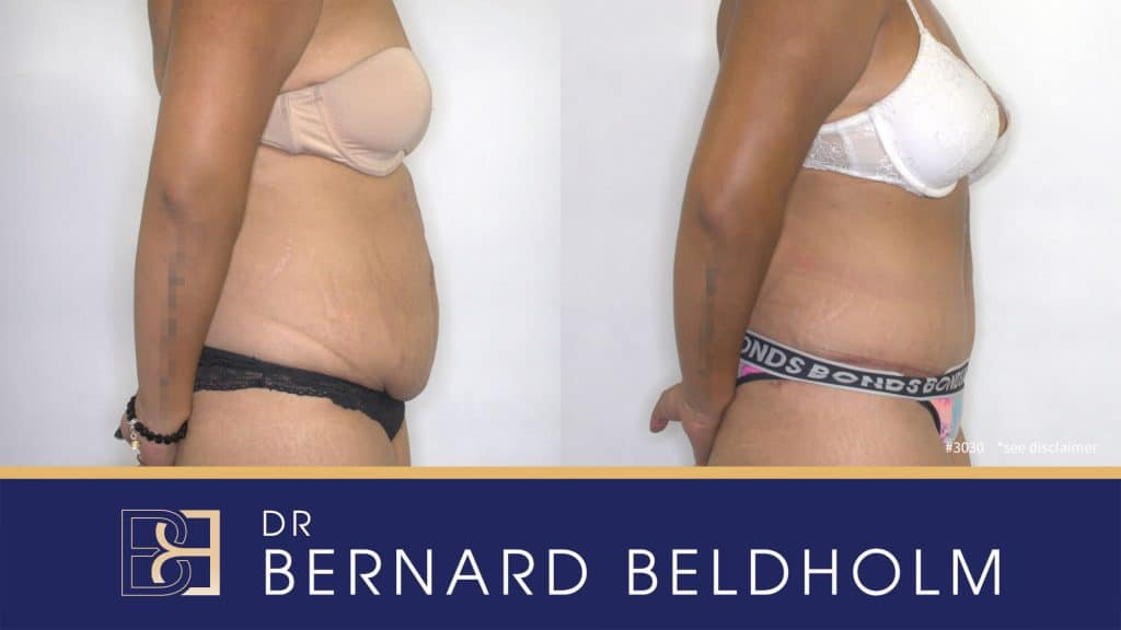 Patient 3030 Tummy Tuck