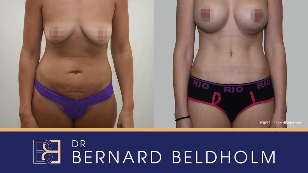 Patient 3092 Tummy Tuck