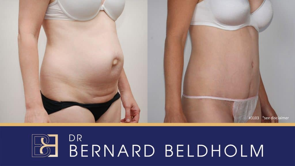 Patient 3103 Tummy Tuck