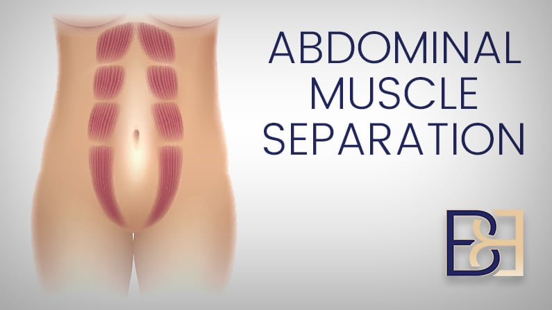 Abdominal Muscle Separation During Pregnancy