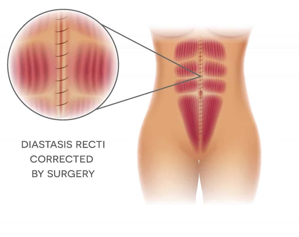 Diastasis Recti Corrected by Surgery