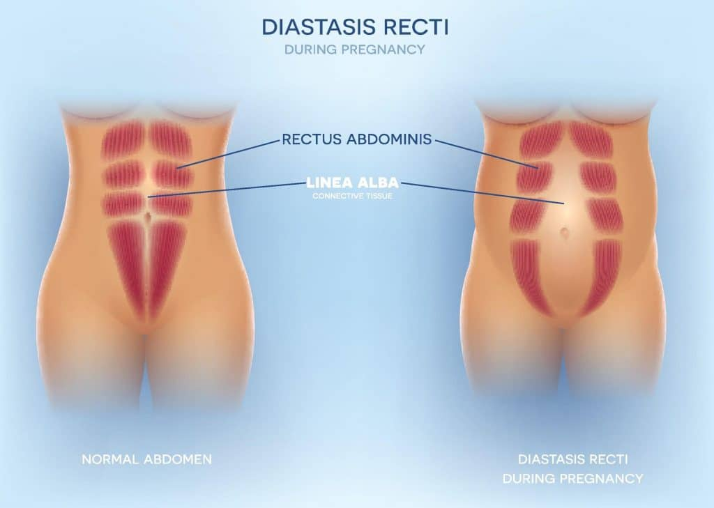 Diastasis Recti During Pregnancy