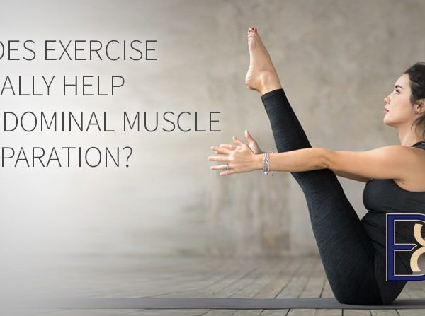Does Exercise Really Help Abdominal Muscle Separation