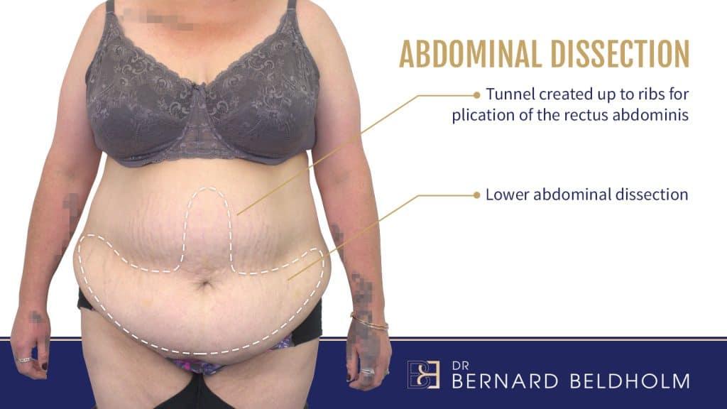 Dr Bernard Beldholm Abdominal Dissection