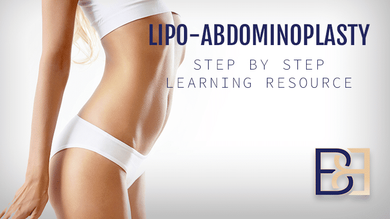Lipo-Abdominoplasty Step by Step Learning Resource