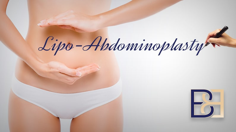 Lipo Abdominoplasty Surgery Guide