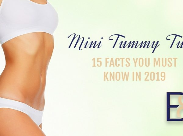 Mini Tummy Tuck 15 Facts you Must Know in 2019