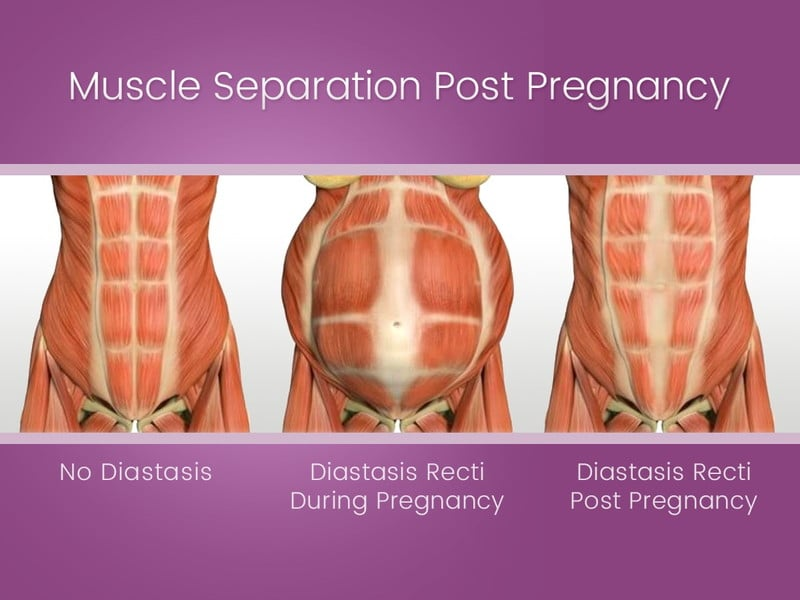 Muscle Separation Post Pregnancy