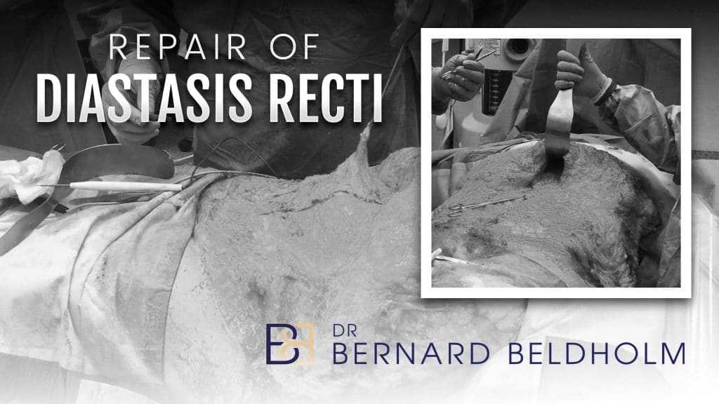 Repair of diastasis recti