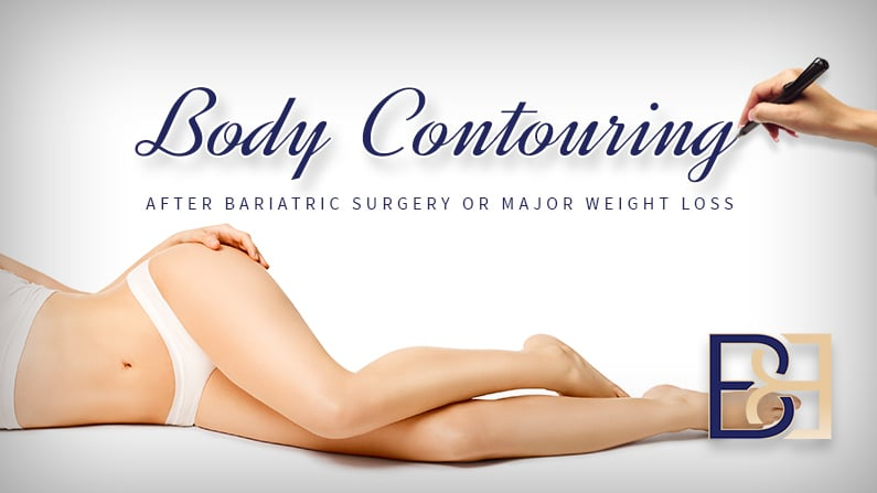 Body Contouring after Bariatric Surgery or Major Weight Loss