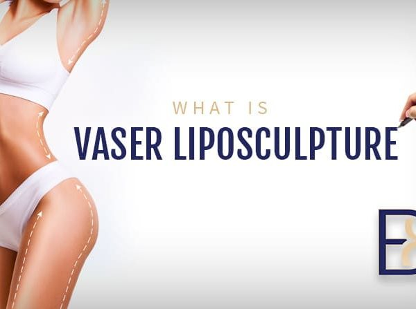 What is VASER Liposculpture
