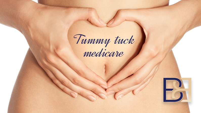 5 Smart Ways to Get a Tummy Tuck Medicare Rebate in Newcastle
