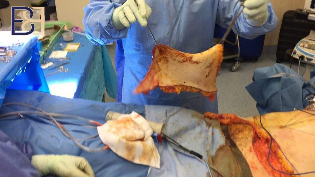 Skin removed with tummy tuck