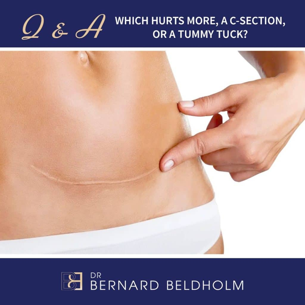 Q&A Which Hurts more Tummy Tuck or C-Section