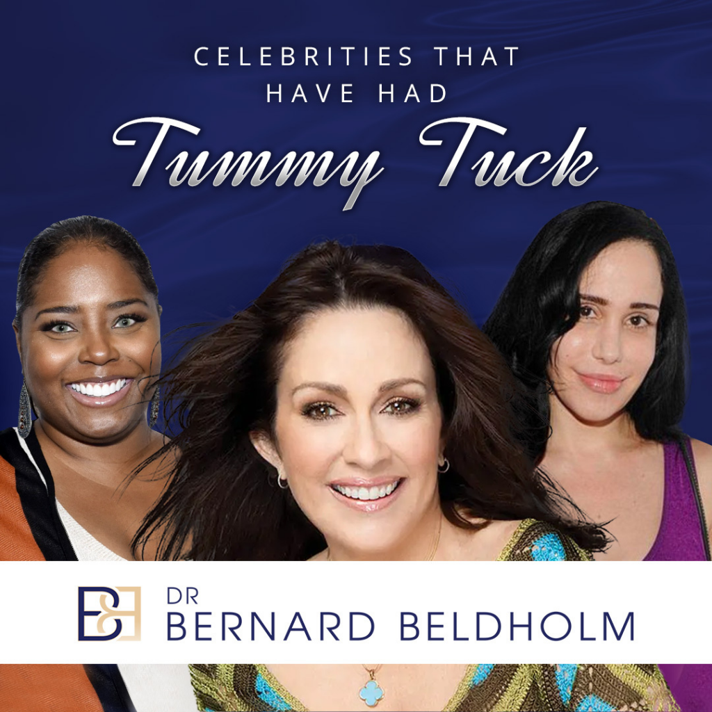 Celebrities that have had Tummy Tuck