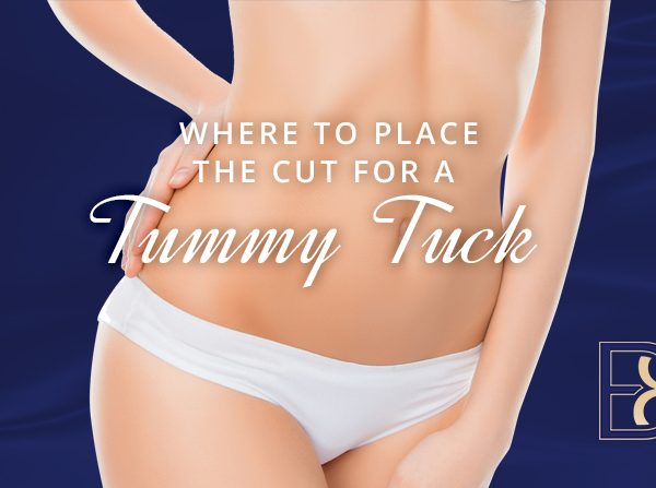 Where to place the cut for a tummy tuck