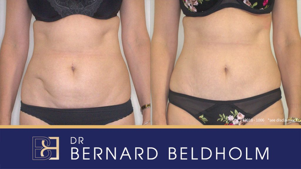Patient 2018-1006 Mini sculpt tummy tuck