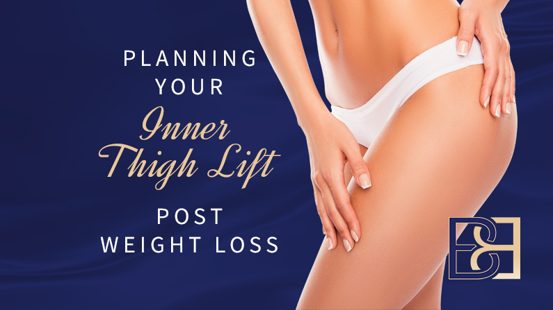 Planning your inner thigh lift post - weight loss