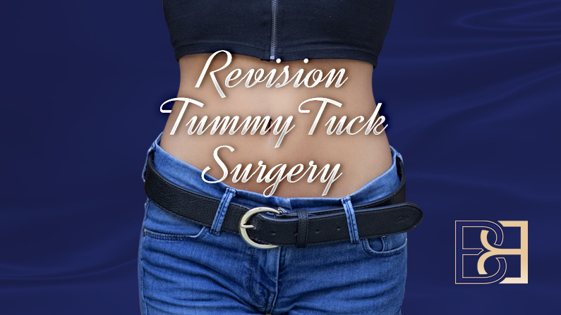 Revision Tummy Tuck Surgery