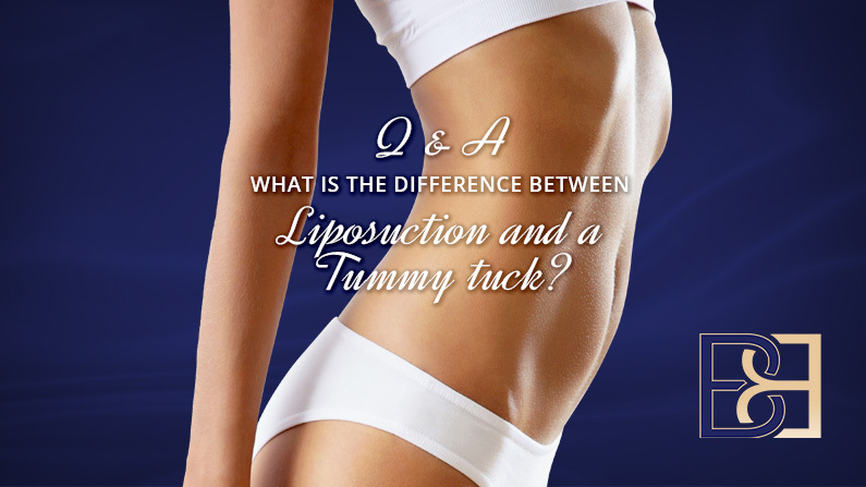 Lipo vs Tummy Tuck — Which is Better for Your Needs?