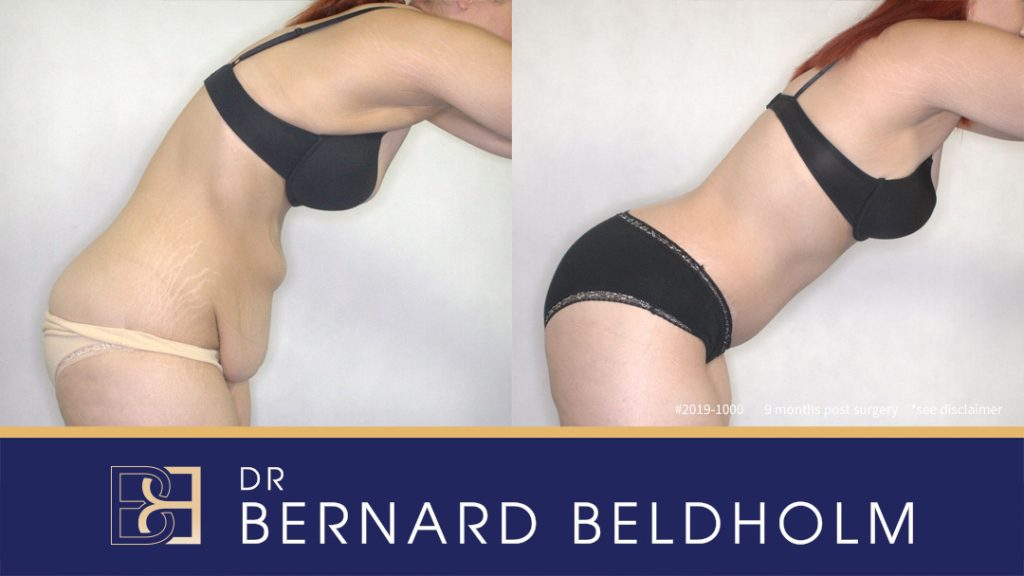 Patient 2019-1000 Abdominoplasty - Before and After