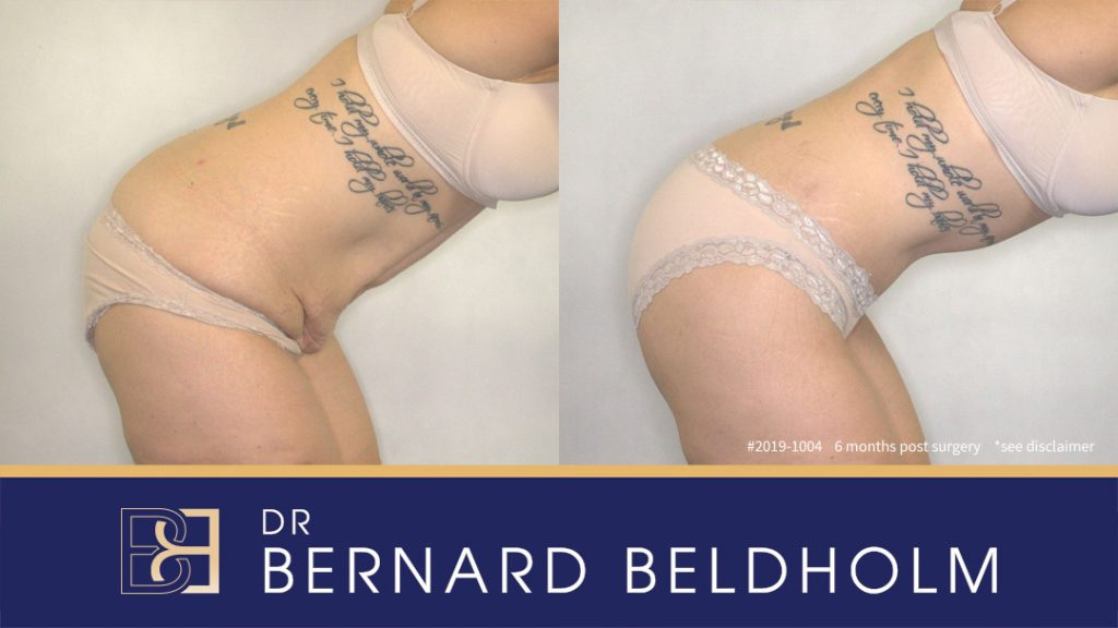 Patient 2019-1004 Sculpt Tummy Tuck Before and After Results