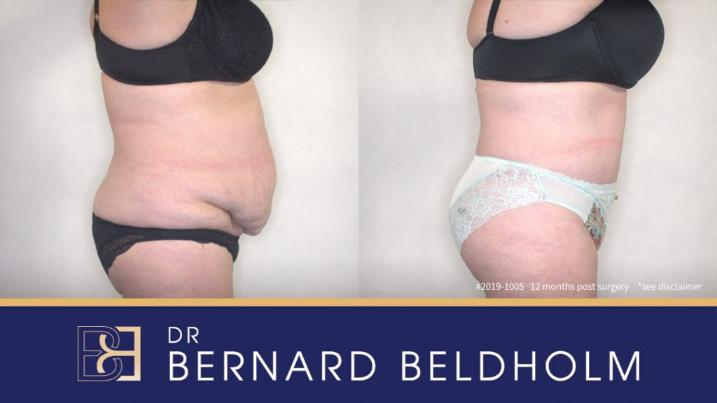 Patient 2019-1005 - Abdominoplasty - Before and After Results