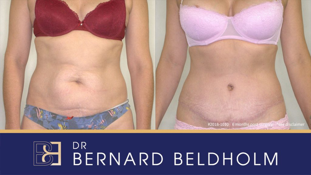 Patient 2018-1010 Tummy Tuck Before After