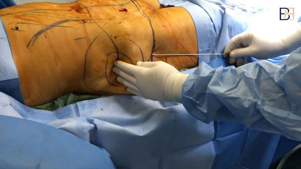 Sculpt Tummy Tuck Fat Melting