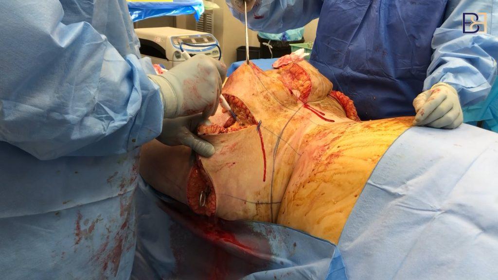 Belt Lipectomy Tightening of Loose Skin by Dr Bernard Beldholm