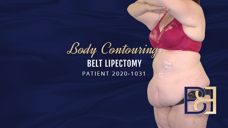 Patient 2020-1031 Belt Lipectomy Body Contouring