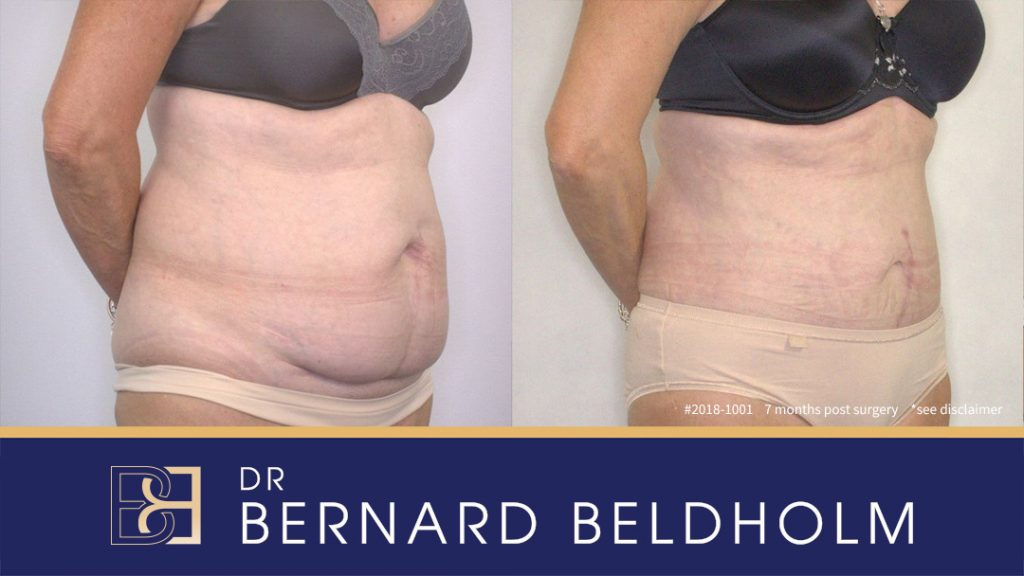 2018-1001 mini sculpt tummy tuck - Before and After
