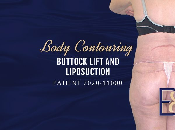 2020-11000 Buttock lift and Liposuction of saddle bags