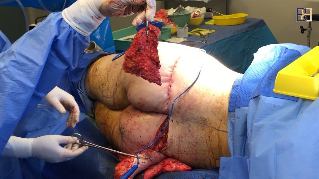 Buttock Lift Incision Closure 2