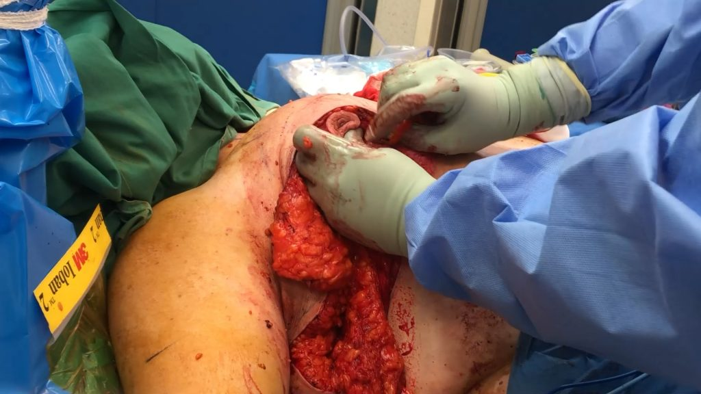 Auto Augmentation Breast Lift - Breast reshaping by Dr Bernard Beldholm