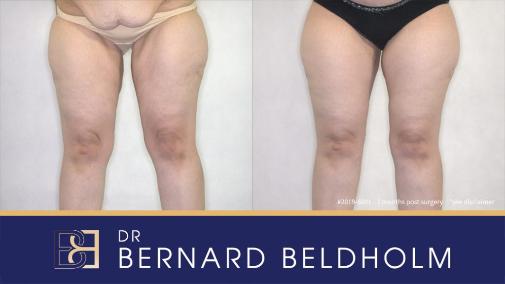 Patient 2019-6001 Inner thigh lift - Before & After