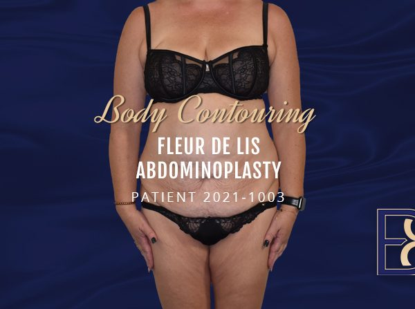 Patient 2021-1003 - Body Contouring