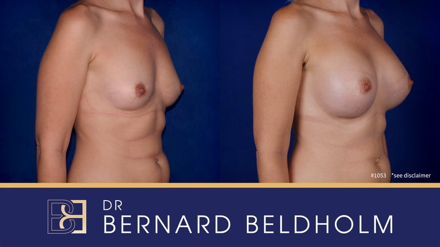 Patient 1053 Breast Augmentation