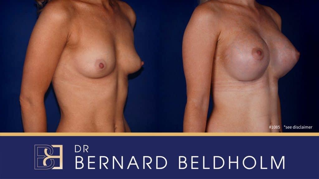 Patient 1085 Breast Augmentation