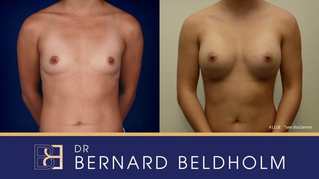 Patient 1118 Breast Augmentation