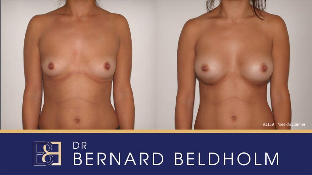 Patient 1159 Breast Augmentation