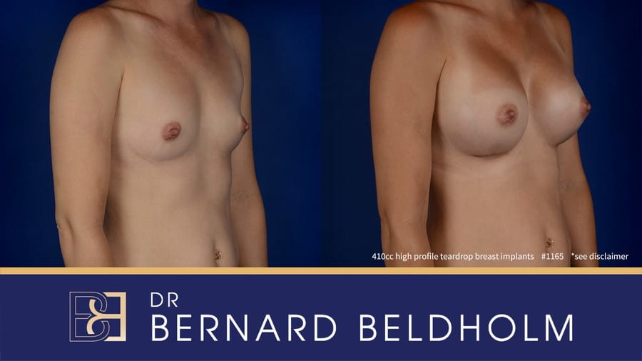 Patient 1165 Breast Augmentation