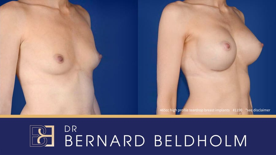 Patient 1190 Breast Augmentation