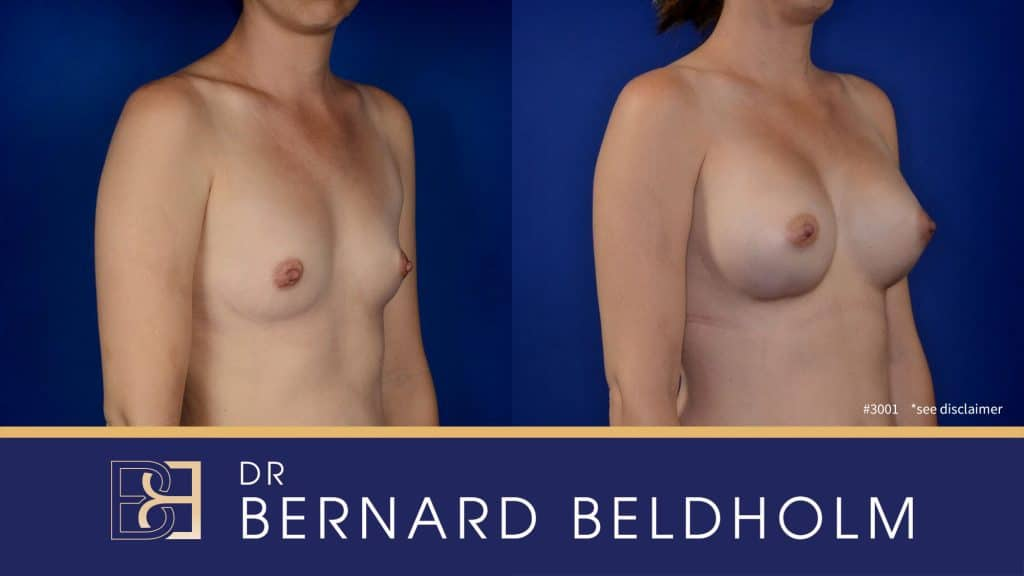 Patient 3001 Breast Augmentation