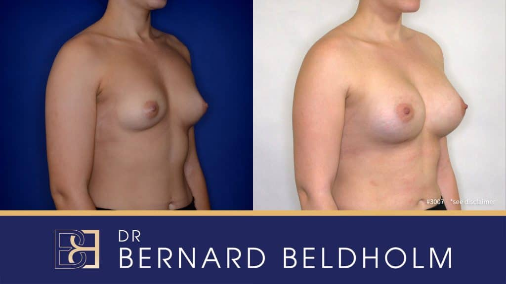 Patient 3007 Breast Augmentation