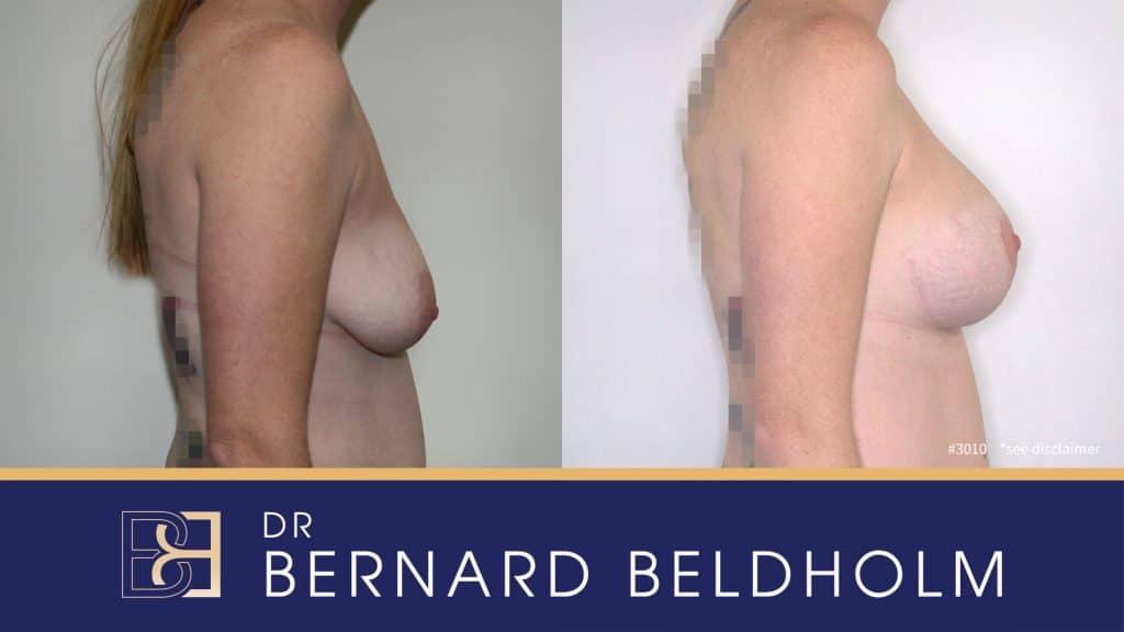 Patient 3010 Breast Augmentation