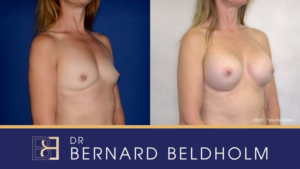 Patient 3016 Breast Augmentation