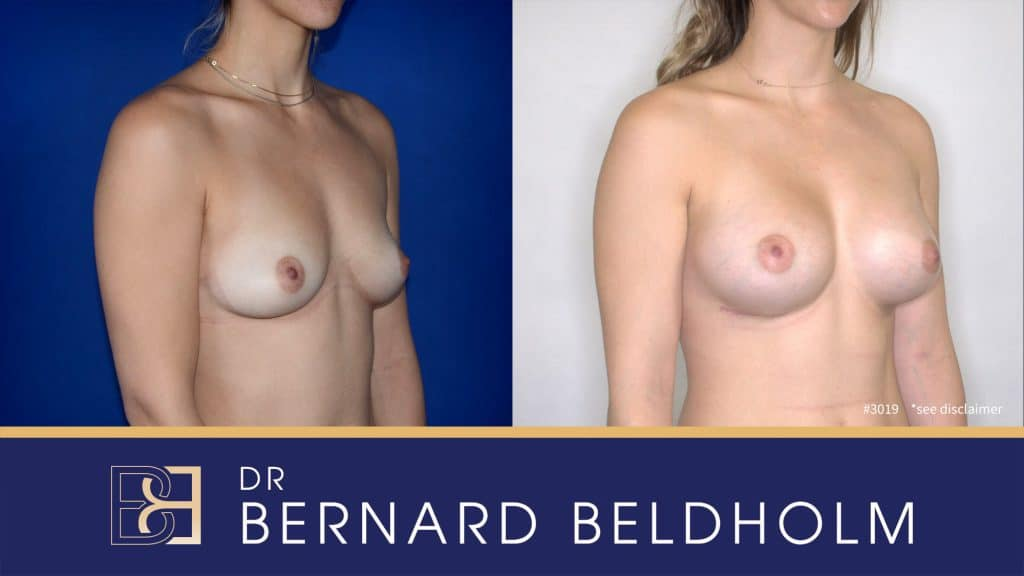 Patient 3019 Breast Augmentation